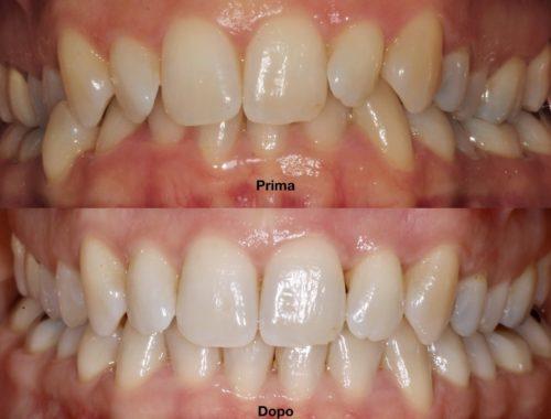 apparecchi per i denti